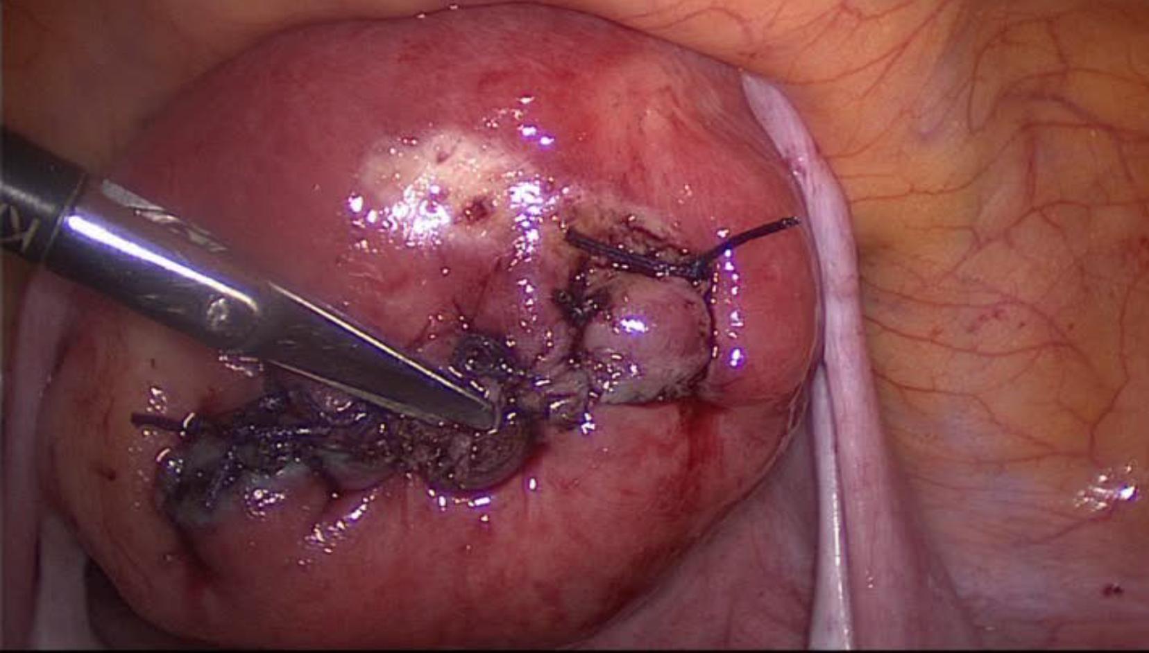 Cirurgia: Dr. Renato Tomioka - Sutura com pontos separados de Vicryl